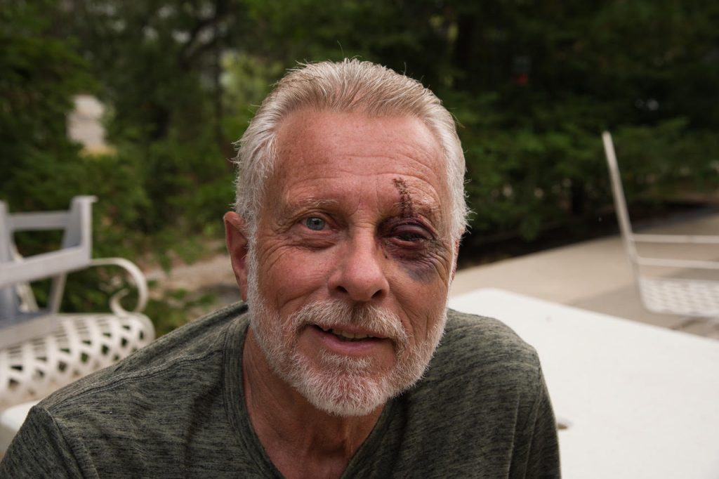 Ken DeCamp recovering from the bear attack wounds he received in the Trinity Alps of Northern California.